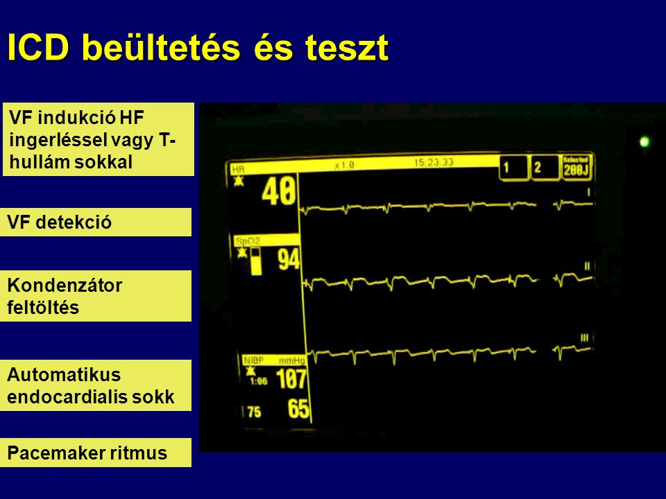 ICD beültetés és teszt VF indukció HF ingerléssel vagy T-hullám sokkal