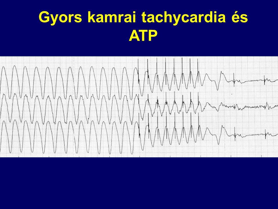 Gyors kamrai tachycardia és ATP