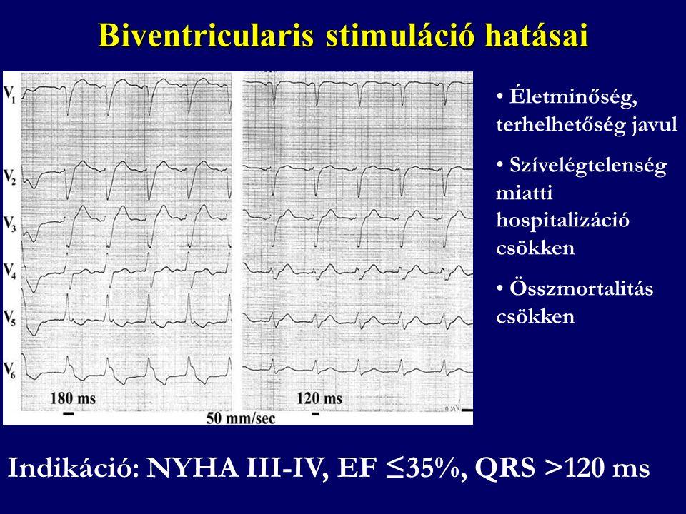 Biventricularis stimuláció hatásai