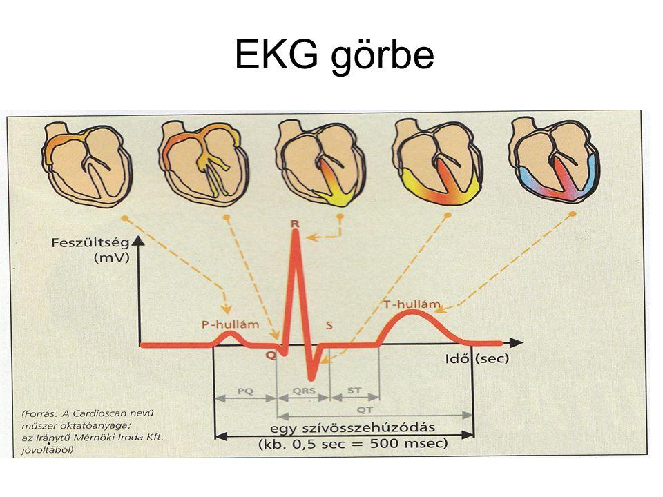 EKG görbe