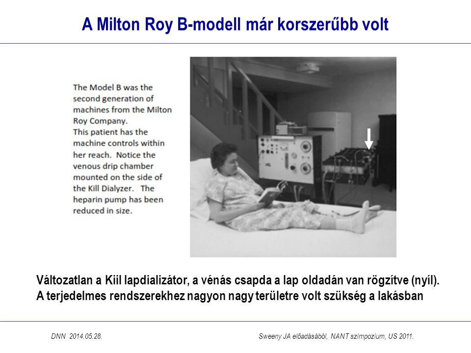 A Milton Roy B-modell már korszerűbb volt