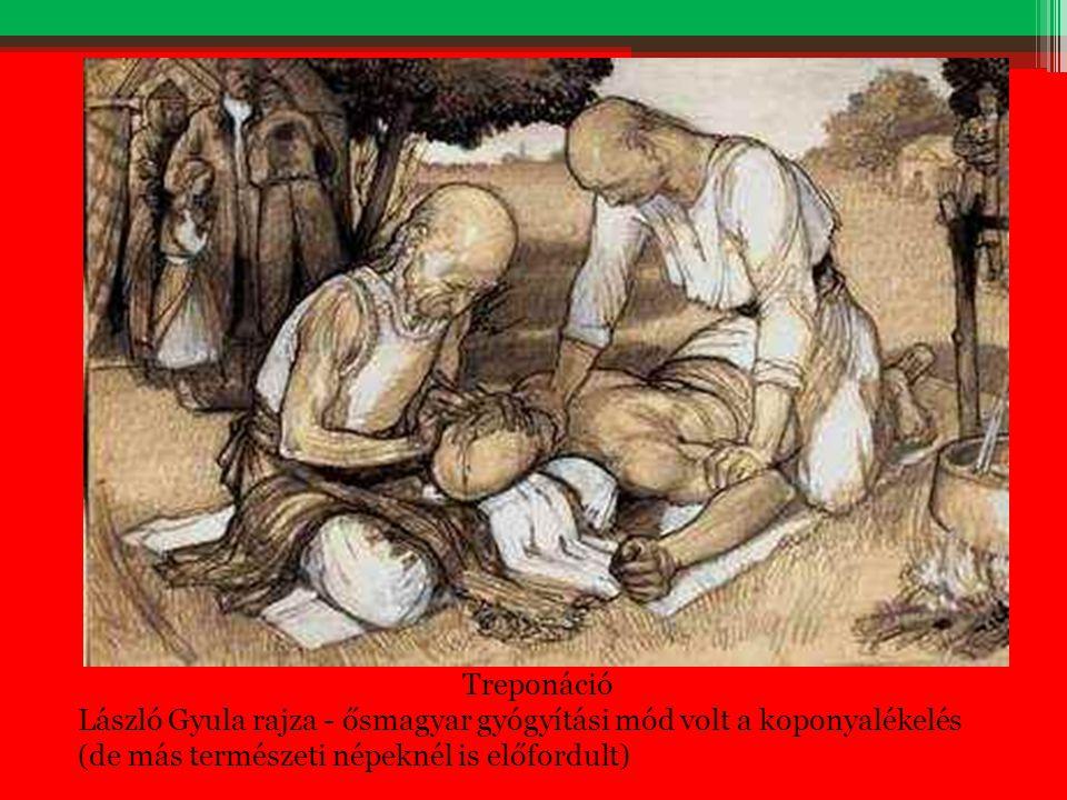 Treponáció László Gyula rajza - ősmagyar gyógyítási mód volt a koponyalékelés (de más természeti népeknél is előfordult)