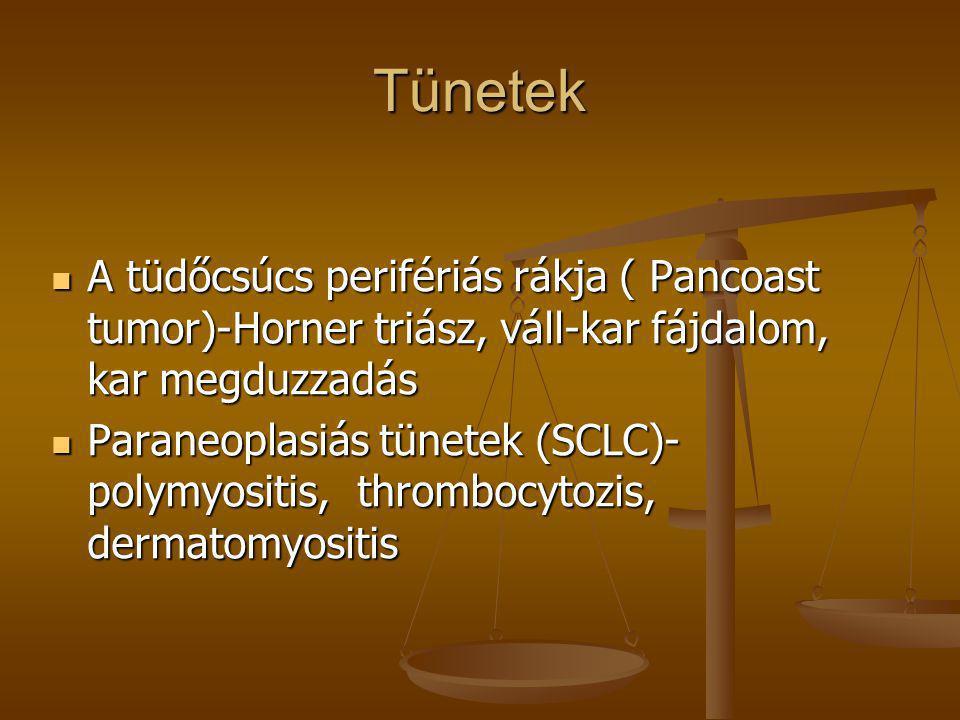 Tünetek A tüdőcsúcs perifériás rákja ( Pancoast tumor)-Horner triász, váll-kar fájdalom, kar megduzzadás.