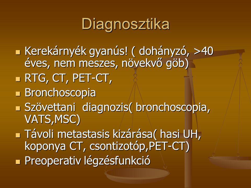 Diagnosztika Kerekárnyék gyanús! ( dohányzó, >40 éves, nem meszes, növekvő göb) RTG, CT, PET-CT, Bronchoscopia.