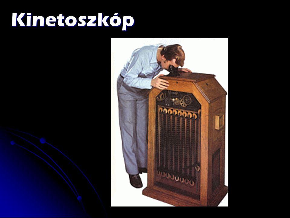 Kinetoszkóp
