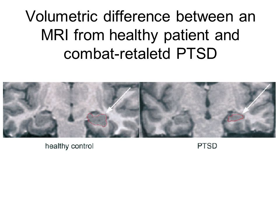 Volumetric difference between an MRI from healthy patient and combat-retaletd PTSD