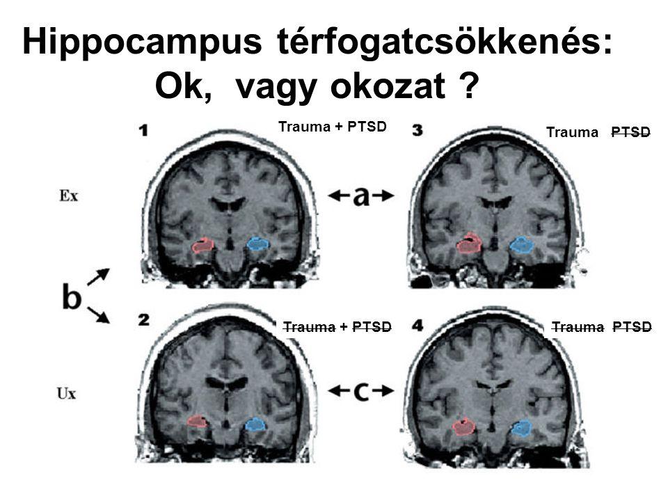 Hippocampus térfogatcsökkenés: Ok, vagy okozat