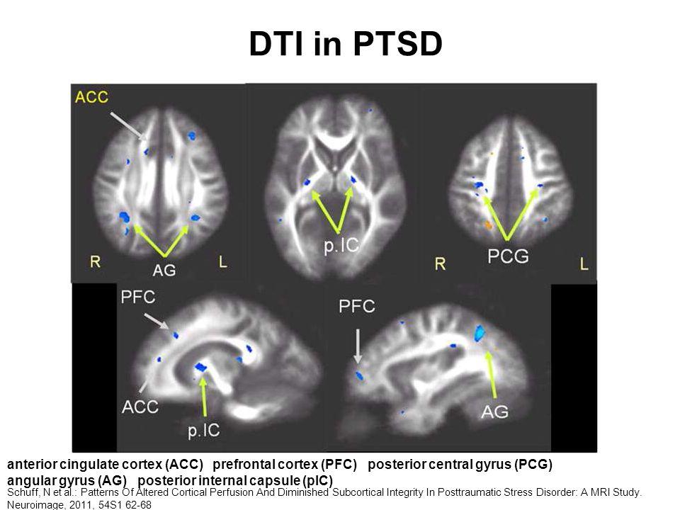 DTI in PTSD