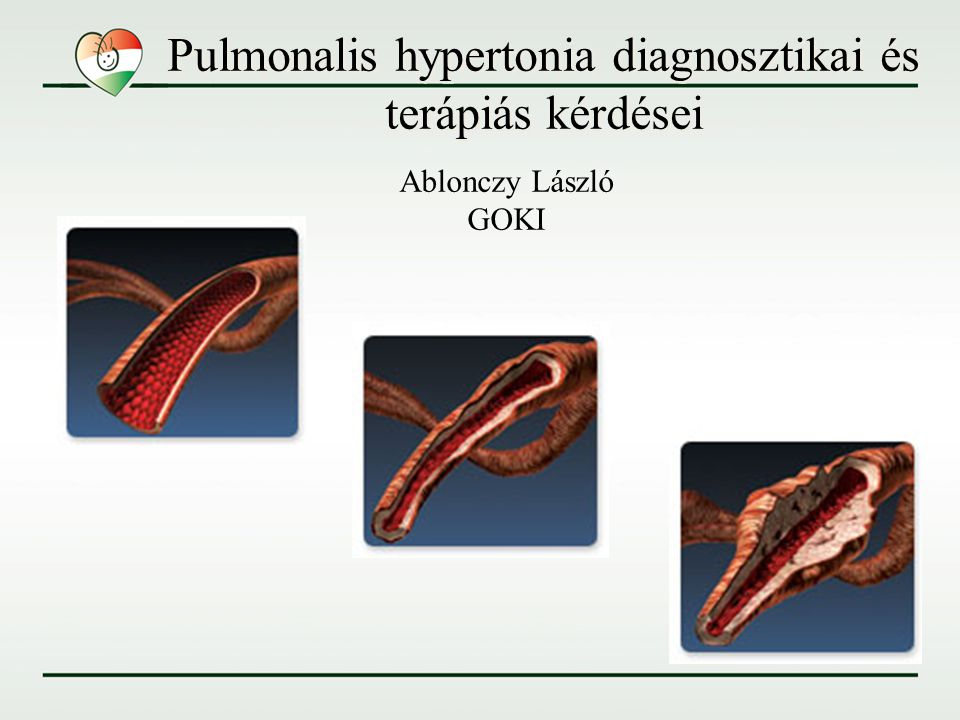 Pulmonalis hypertonia diagnosztikai és terápiás kérdései