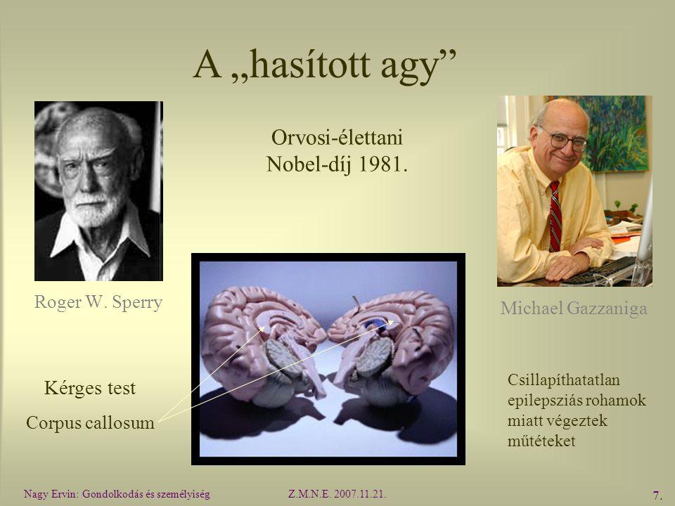 """A """"hasított agy Orvosi-élettani Nobel-díj 1981. Kérges test"""
