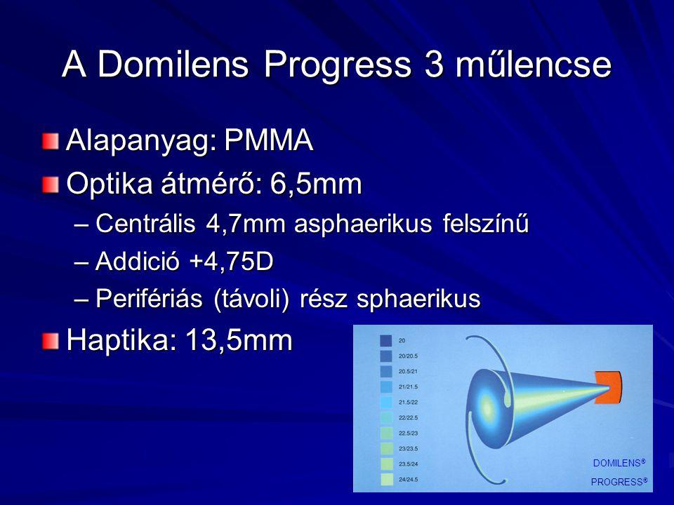 A Domilens Progress 3 műlencse