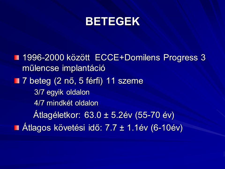BETEGEK 1996-2000 között ECCE+Domilens Progress 3 műlencse implantáció