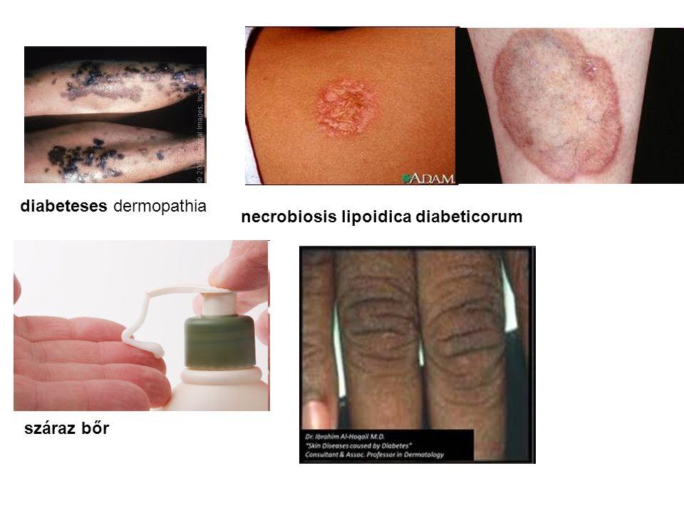 diabeteses dermopathia
