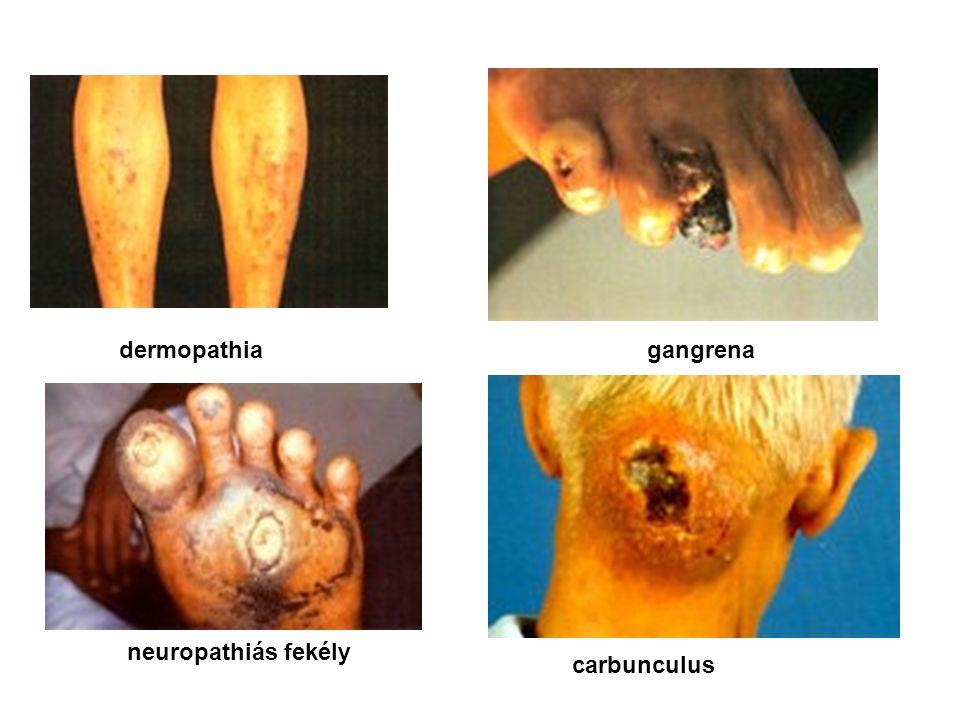 dermopathia gangrena neuropathiás fekély carbunculus