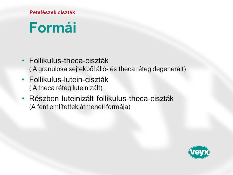Petefészek ciszták Formái. Follikulus-theca-ciszták ( A granulosa sejtekből álló- és theca réteg degenerált)