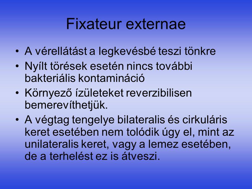 Fixateur externae A vérellátást a legkevésbé teszi tönkre
