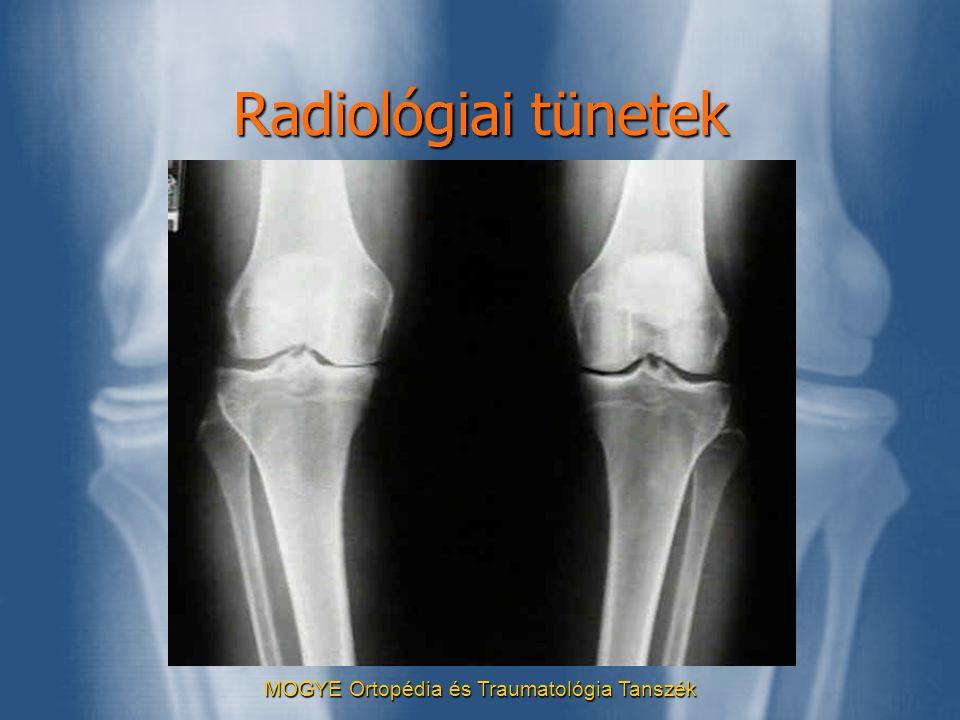 MOGYE Ortopédia és Traumatológia Tanszék