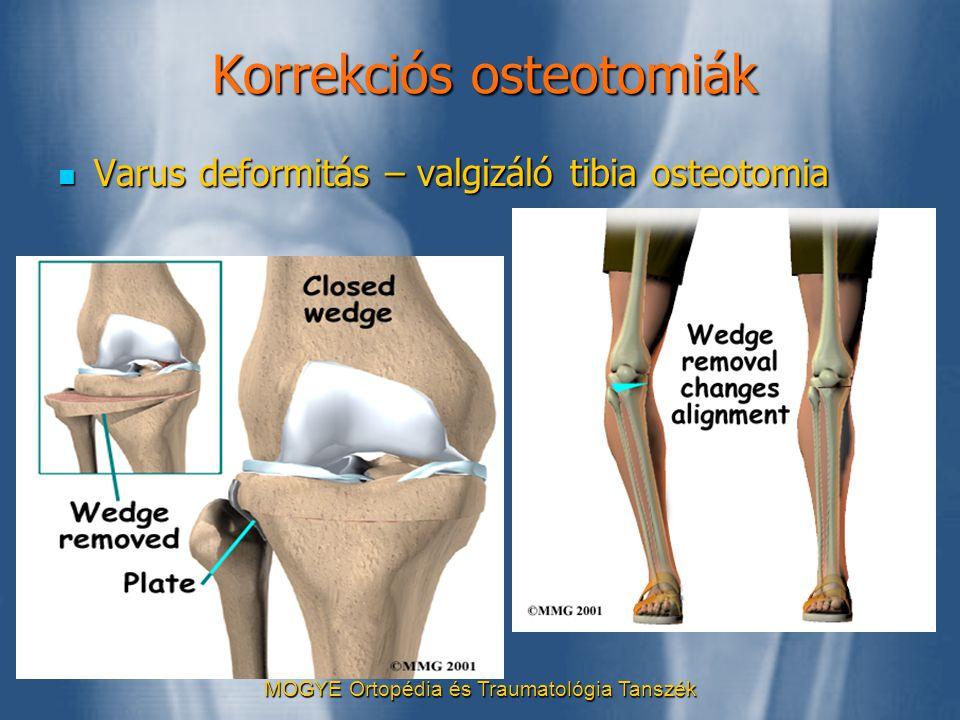 Korrekciós osteotomiák