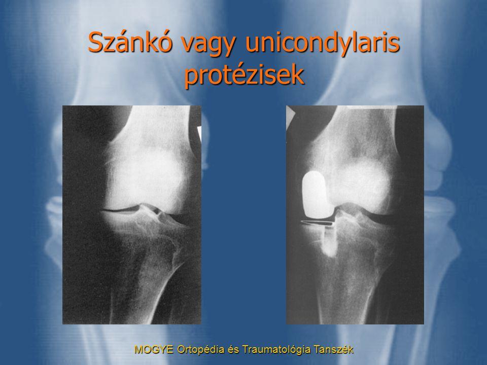 Szánkó vagy unicondylaris protézisek