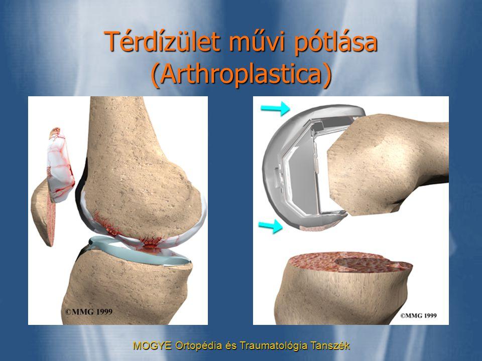 Térdízület művi pótlása (Arthroplastica)