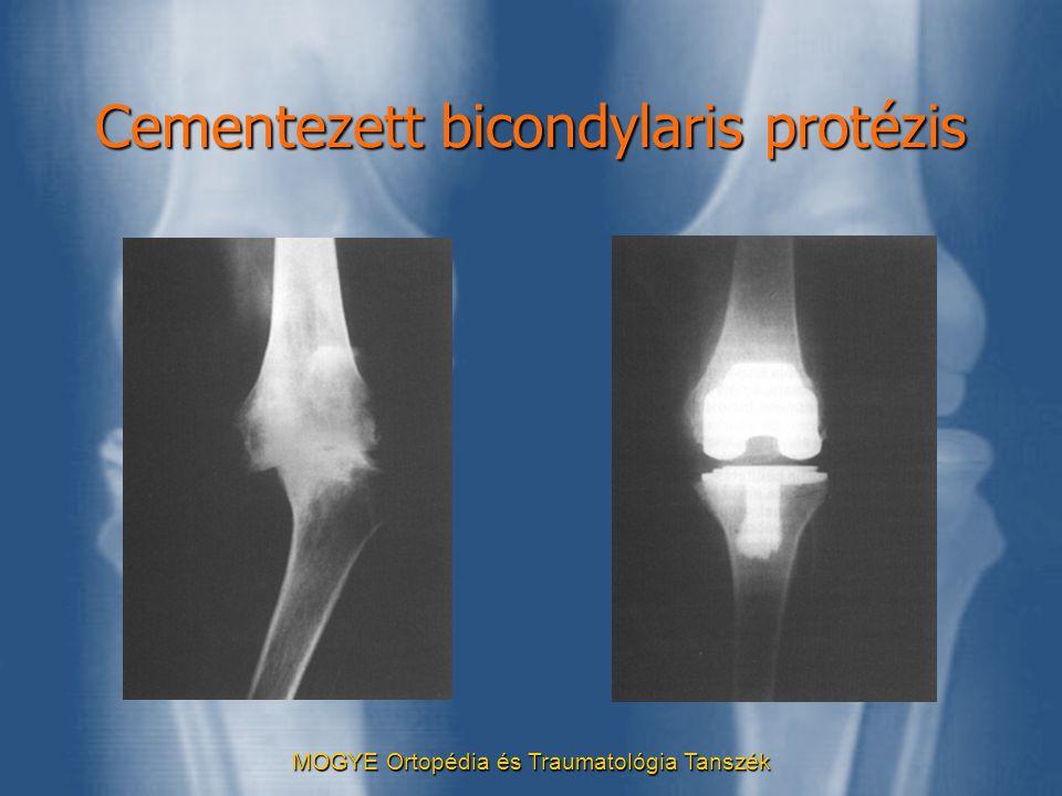 Cementezett bicondylaris protézis