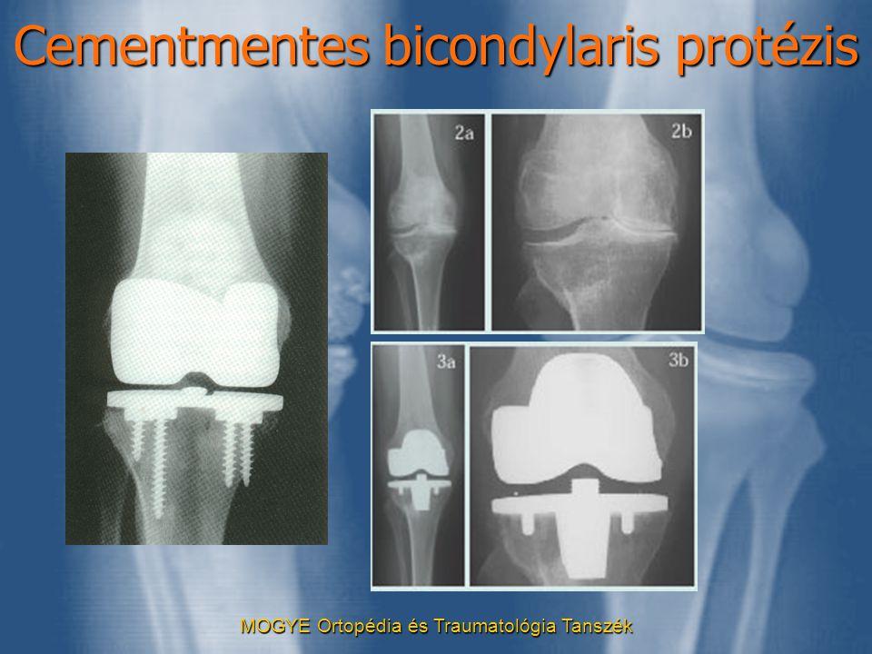 Cementmentes bicondylaris protézis