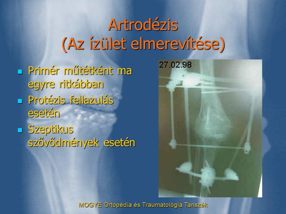 Artrodézis (Az ízület elmerevítése)