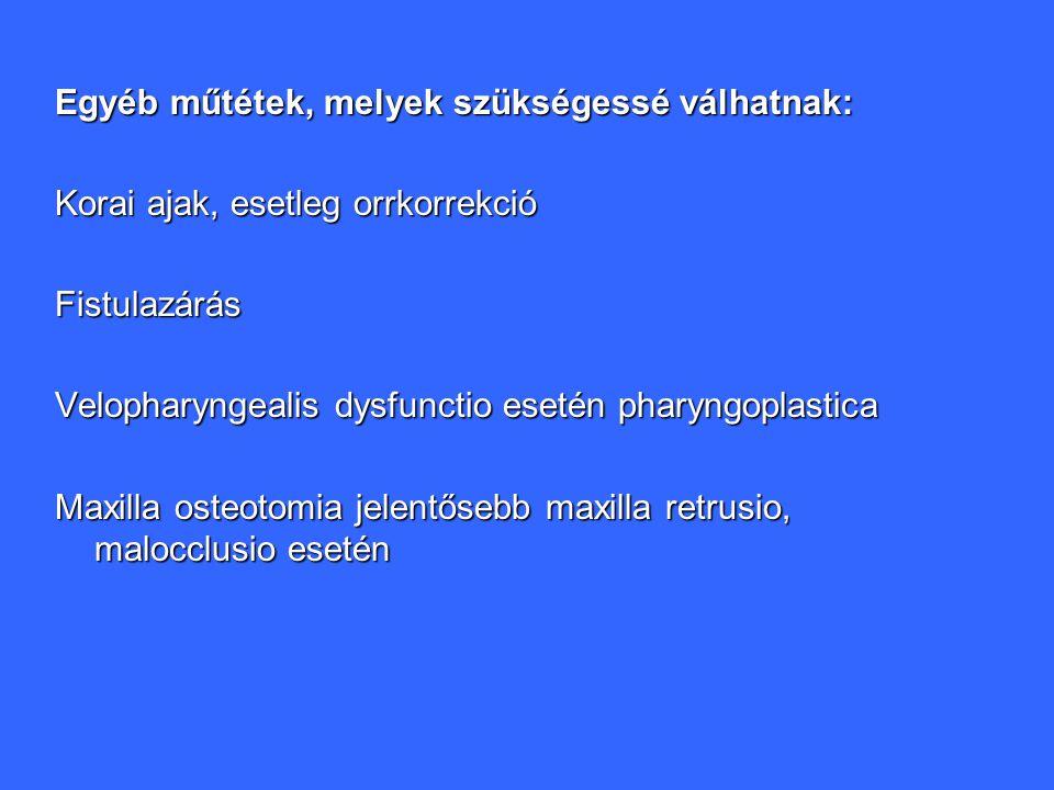 Egyéb műtétek, melyek szükségessé válhatnak: