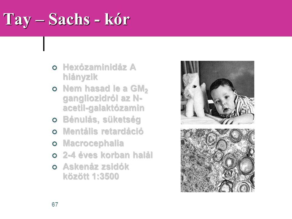 Tay – Sachs - kór Hexózaminidáz A hiányzik
