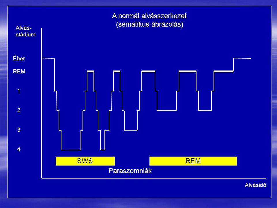 A normál alvásszerkezet (sematikus ábrázolás)