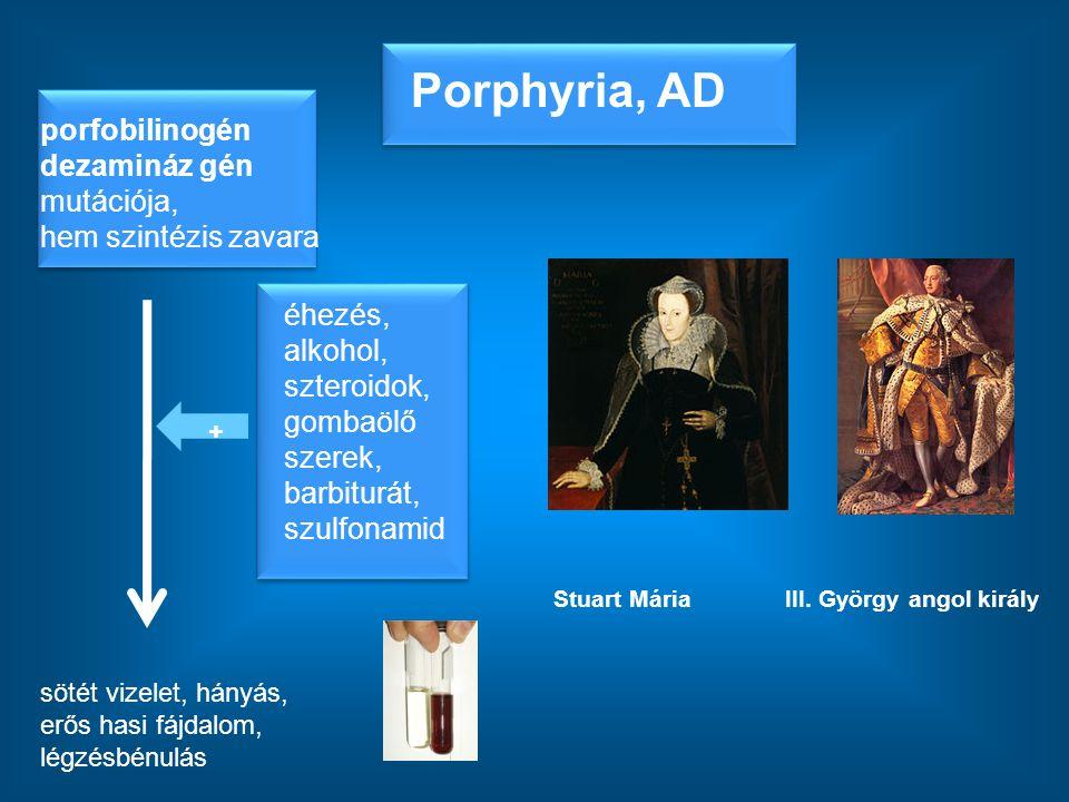 Porphyria, AD porfobilinogén dezamináz gén mutációja, hem szintézis zavara.