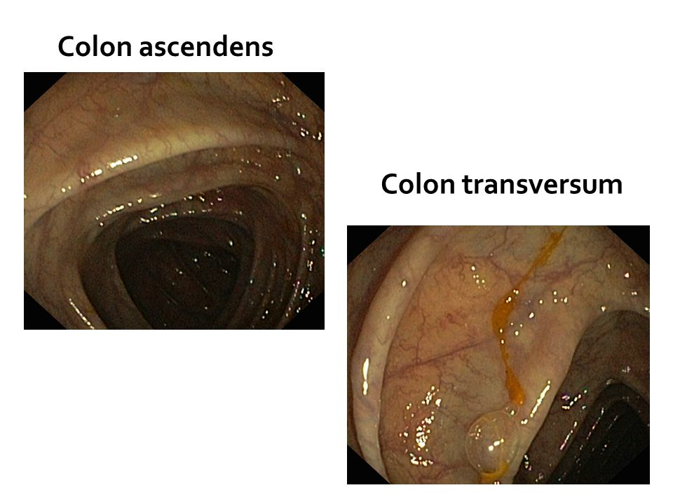 Colon ascendens Colon transversum