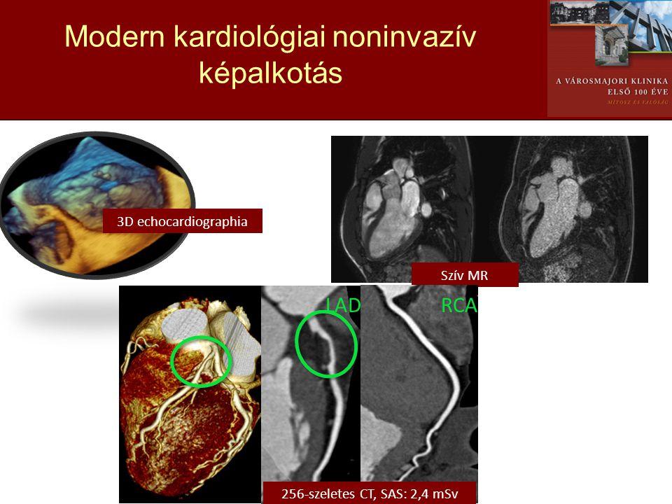 Modern kardiológiai noninvazív képalkotás