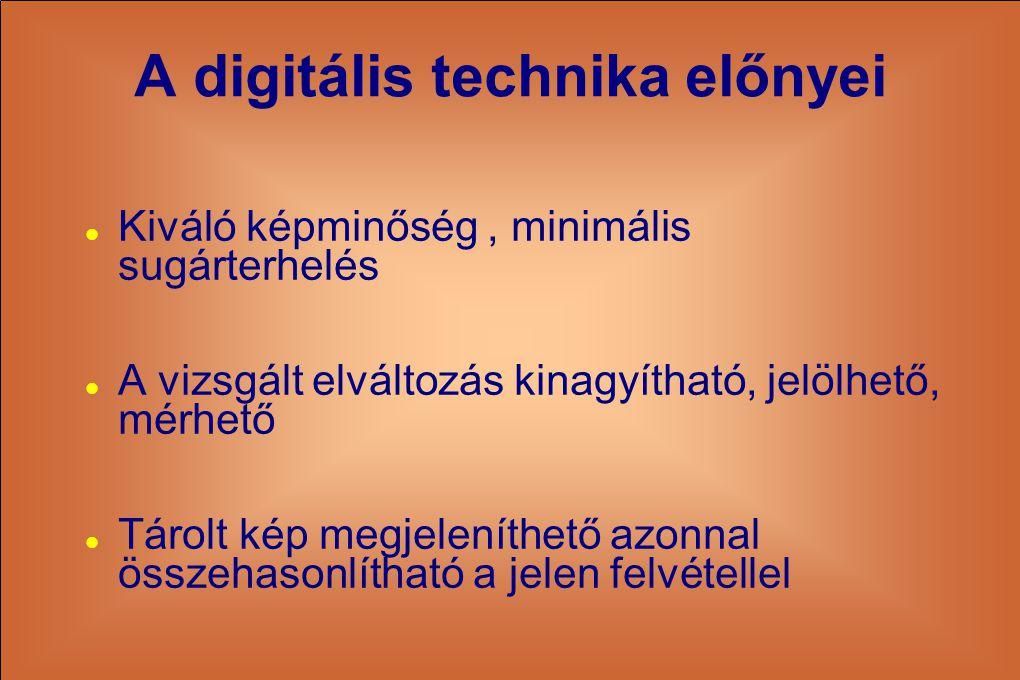 A digitális technika előnyei
