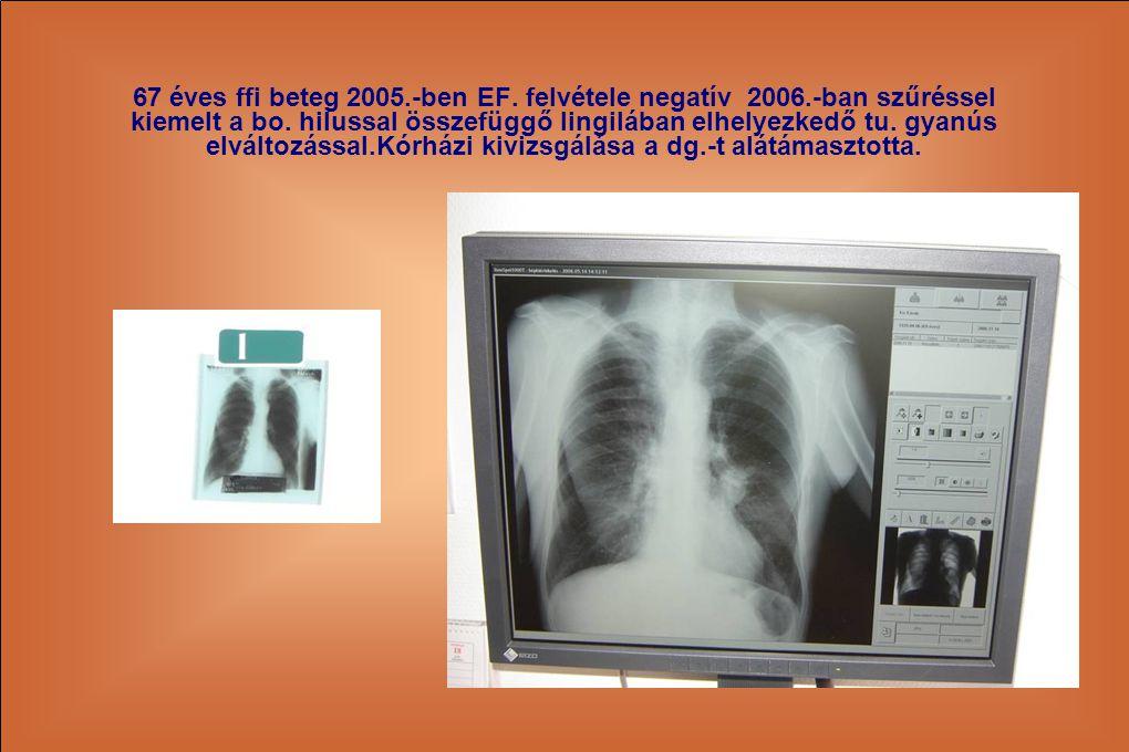 67 éves ffi beteg 2005. -ben EF. felvétele negatív 2006