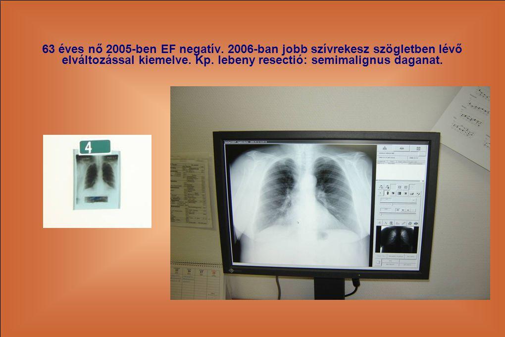 63 éves nő 2005-ben EF negatív. 2006-ban jobb szívrekesz szögletben lévő elváltozással kiemelve.