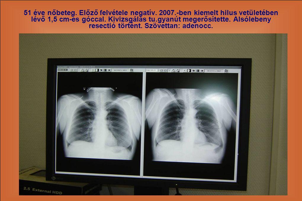 51 éve nőbeteg. Előző felvétele negatív. 2007