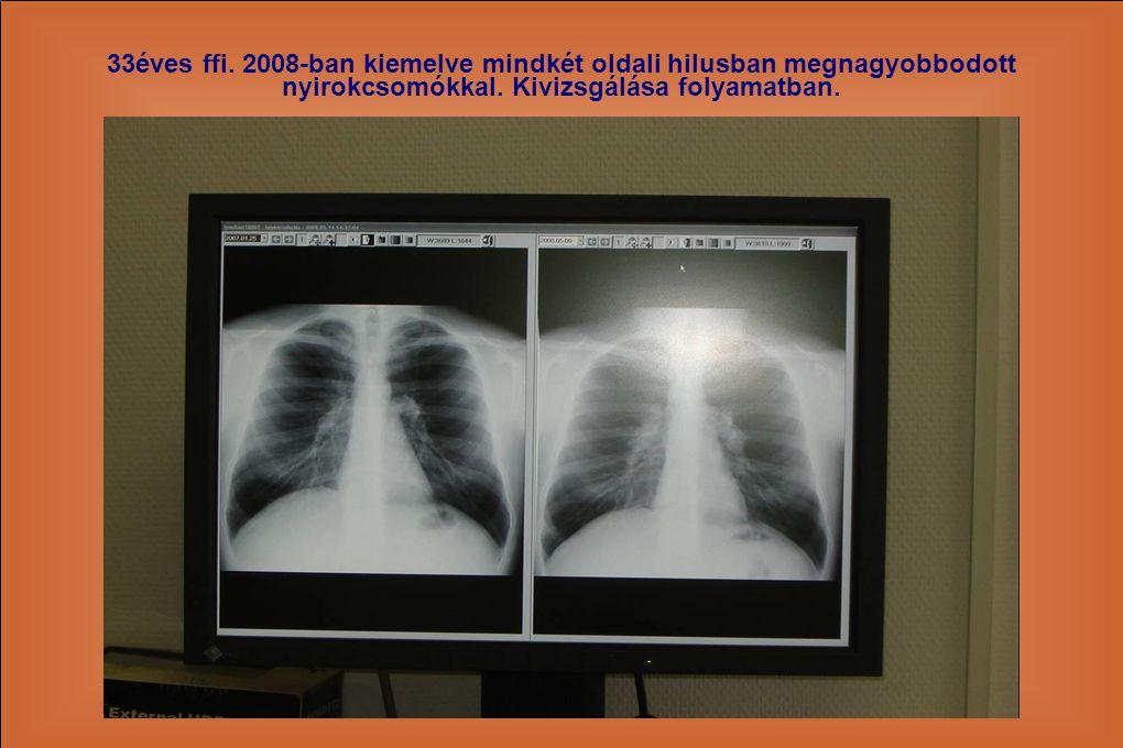 33éves ffi. 2008-ban kiemelve mindkét oldali hilusban megnagyobbodott nyirokcsomókkal.