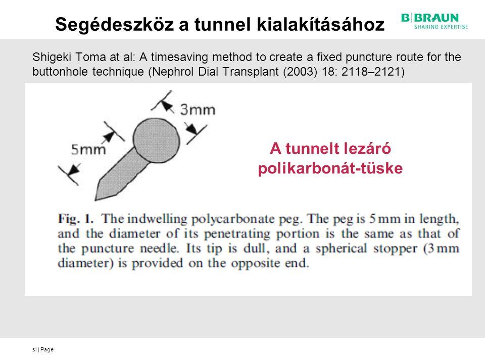 Segédeszköz a tunnel kialakításához