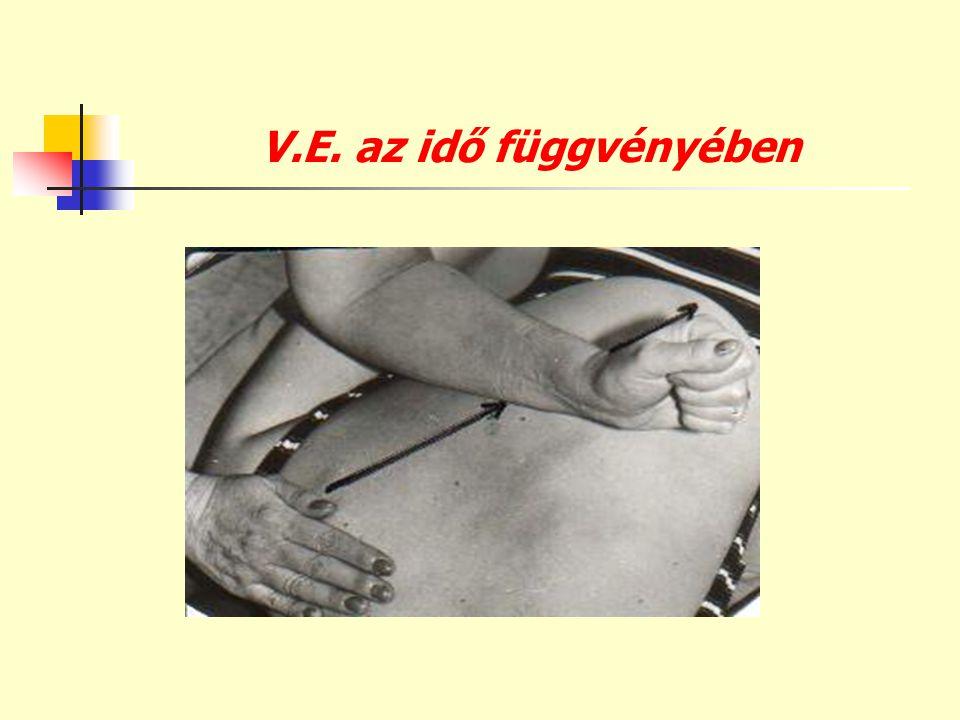 V.E. az idő függvényében