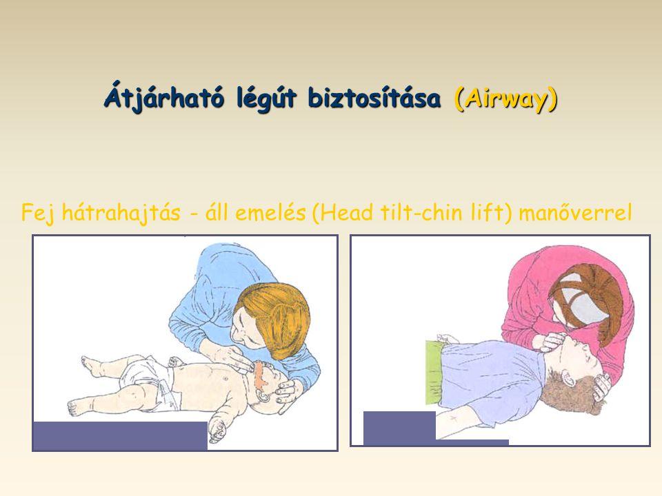 Átjárható légút biztosítása (Airway)