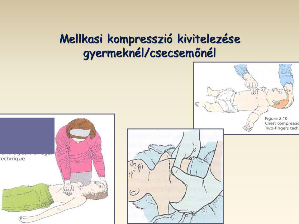 Mellkasi kompresszió kivitelezése gyermeknél/csecsemőnél