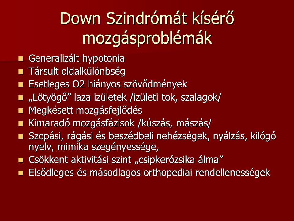 Down Szindrómát kísérő mozgásproblémák