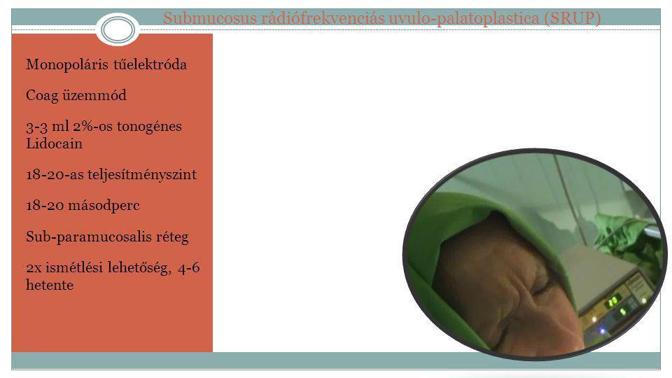 Submucosus rádiófrekvenciás uvulo-palatoplastica (SRUP)
