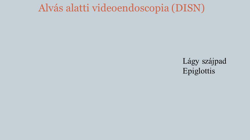 Alvás alatti videoendoscopia (DISN)