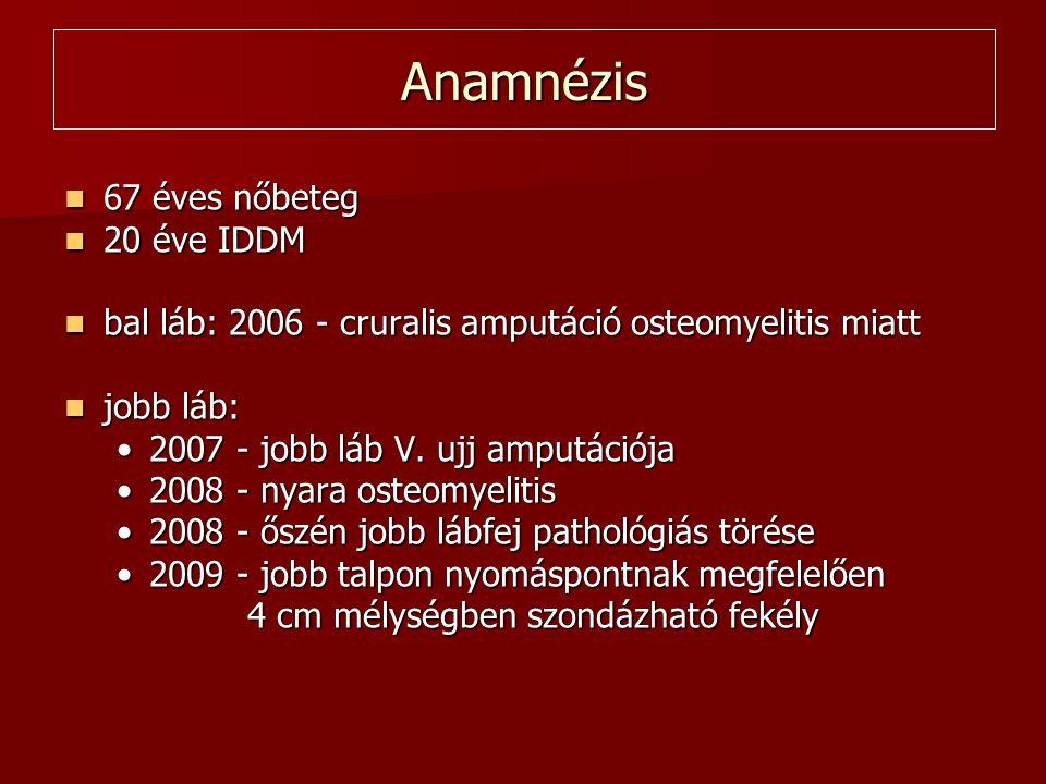Anamnézis 67 éves nőbeteg 20 éve IDDM