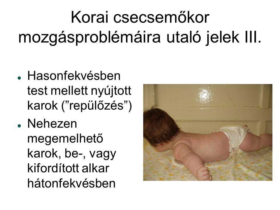 Korai csecsemőkor mozgásproblémáira utaló jelek III.