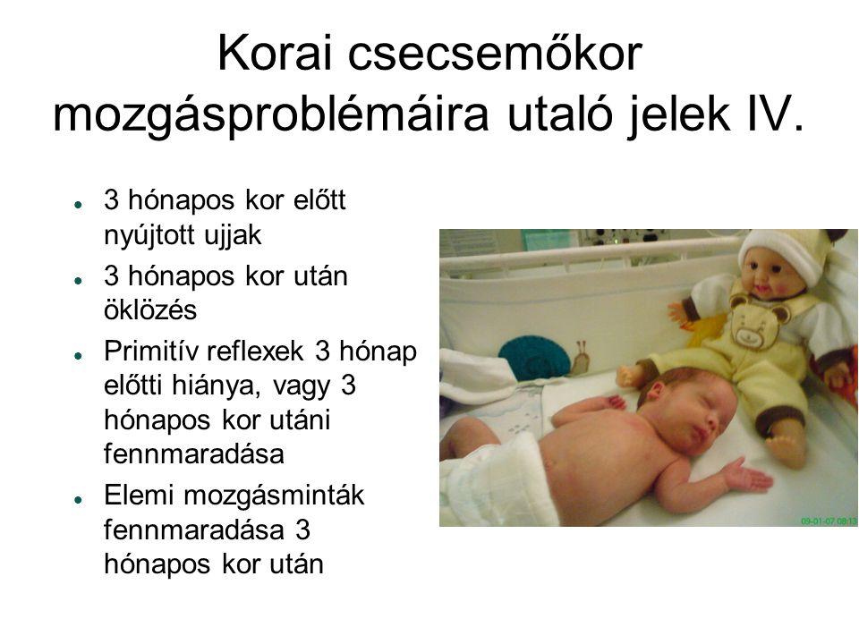 Korai csecsemőkor mozgásproblémáira utaló jelek IV.