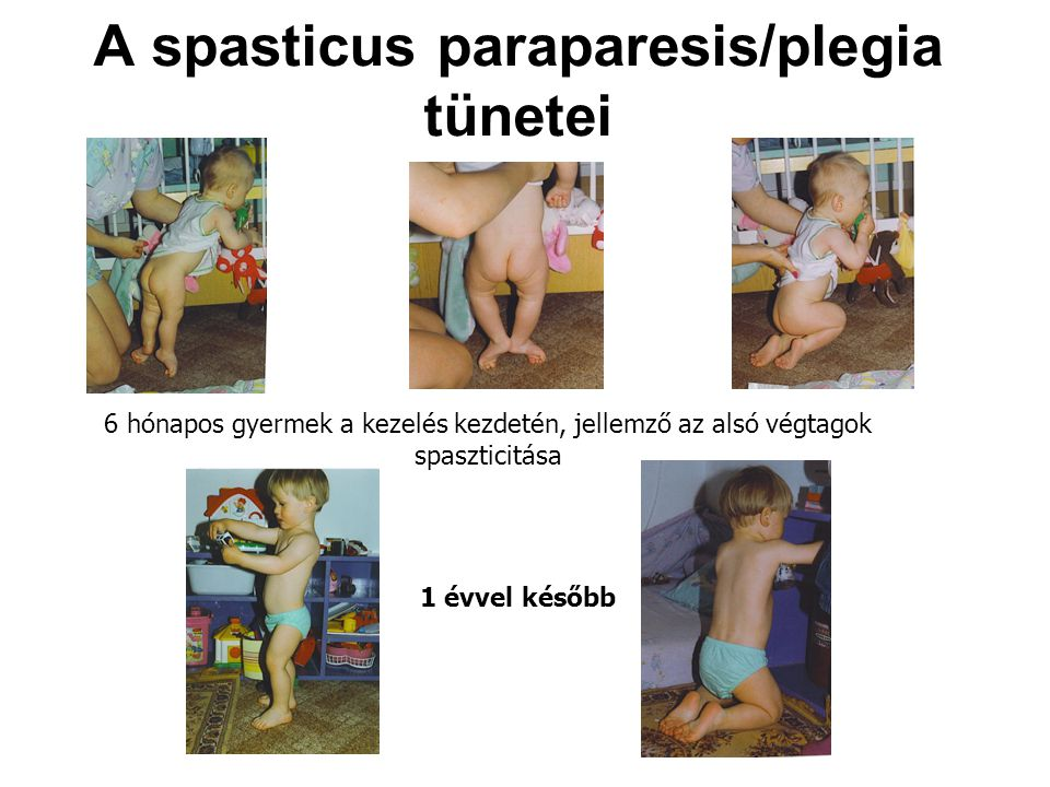 A spasticus paraparesis/plegia tünetei
