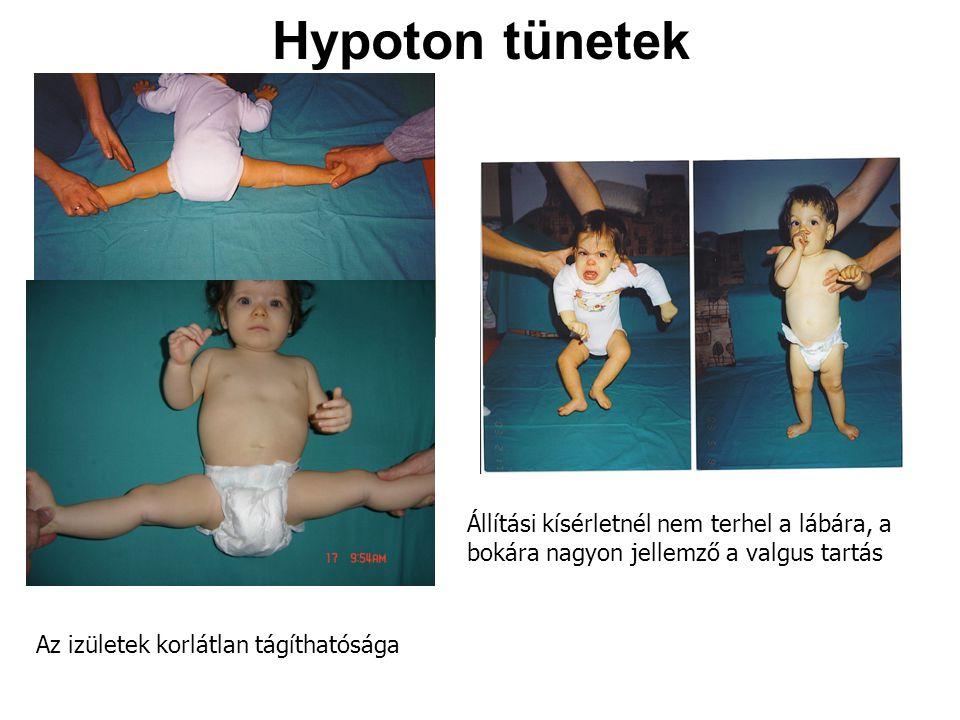 Hypoton tünetek Állítási kísérletnél nem terhel a lábára, a bokára nagyon jellemző a valgus tartás.